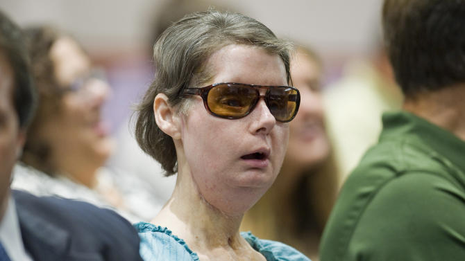 FILE - In this Aug. 10, 2012 file photo, Charla Nash sits before a hearing at the Legislative Office Building in Hartford, Conn. An attorney for Nash says he plans to appeal a decision denying her permission to sue the state for $150 million. (AP Photo/Jessica Hill, File)