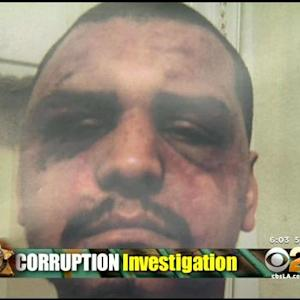 Man Who Alleged Deputies Beat Him While Handcuffed Speaks Out In Wake Of LASD Arrests
