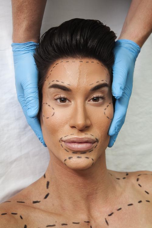 Human Ken Doll Explain Why He Got His Forehead Veins Removed
