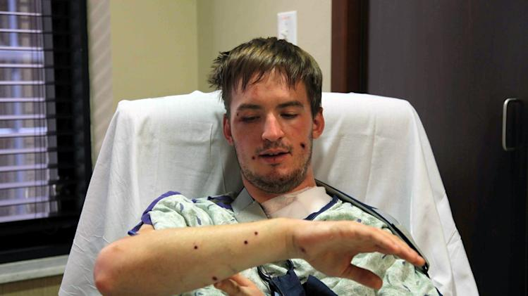 """Stephen Barton, of Southbury, Conn., talks about his injuries Sunday, July 22, 2012, at the Medical Center of Aurora, in Aurora, Colo. Barton was wounded Friday when a gunman opened fire at a midnight showing of the new Batman movie, """"The Dark Knight Rises,"""" in Aurora, where 12 people were killed and dozens more injured. (AP Photo/Robert Ray)"""
