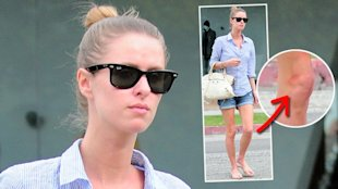Foto: www.splashnews.com - Unglaublich d&#xFC;rr: Nicky Hilton ist seit der Trennung von David Katzenberg wahnsinnig abgemagert