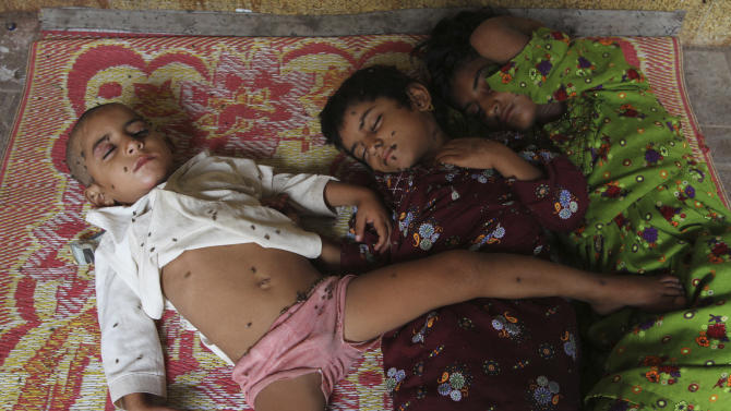 Pakistani children suffering from the extreme weather wait for a medical help outside a local hospital in Karachi, Pakistan, Wednesday, July 1, 2015. Pakistan's government said the brutal heat wave that hit the port city of Karachi and the country's southern province of Sind in June killed 1,250 people before subsiding. (AP Photo/Fareed Khan)