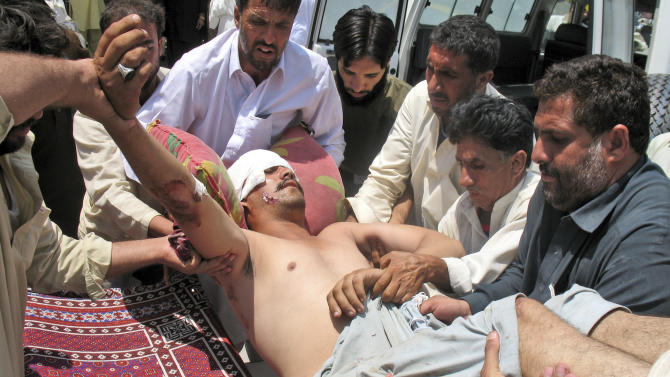 A man who was injured in a roadside bomb in Kohat district outside Orakzai, is brought to a hospital in Peshawar, Pakistan, Wednesday, July 18, 2012. A minibus carrying minority Shiite Muslims hit an anti-tank land mine in northwestern Pakistan on Wednesday, killing several of them in what police described as the country's latest sectarian attack. (AP Photo/Mohammad Zubair)