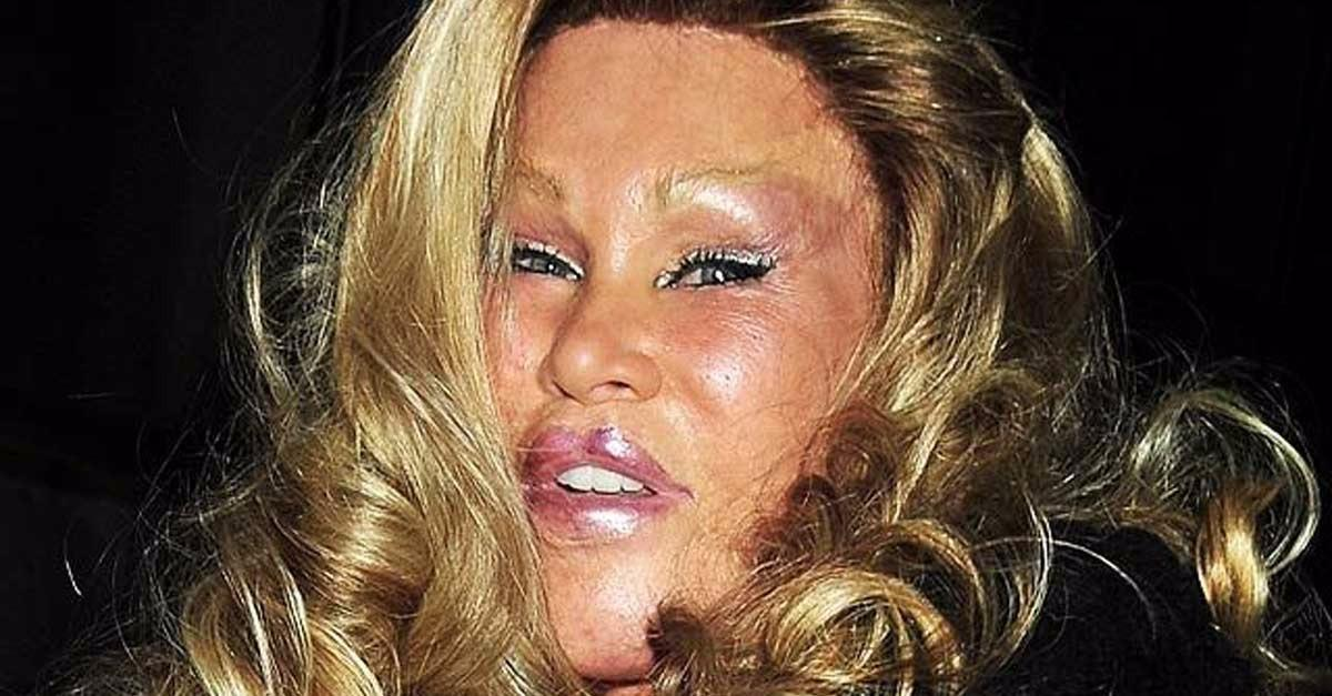 13 Celebrity Plastic Surgery Pics