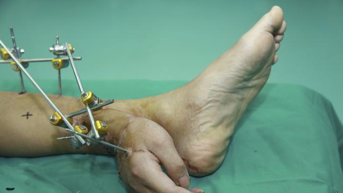 Handout photo of Xiao Wei's severed right hand seen attached to his ankle before the reattachment surgery at Xiangya Hospital in Changsha