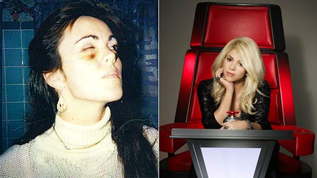 Buzzmakers: Dina's Black Eye & New 'Voice'