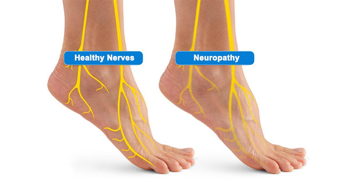 Suffering From Nerve Pain?