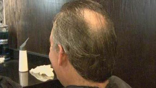 new method to regrow hair using a person's own cells holds promise ...