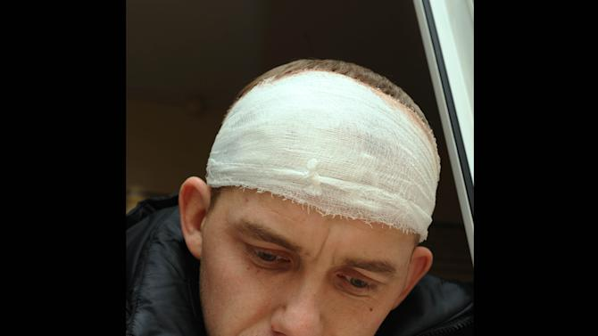 Alexander Babin, a rescuer employed by  Chelyabinsk Airlines, who was injured by glass from window  at his home broken by a shock wave from a meteor explosion, rests after getting  medical care in Chelyabinsk Regional Hospital in Chelyabinsk, about 1500 kilometers (930 miles) east of Moscow, Saturday, Feb. 16, 2013. A meteor that scientists estimate weighed 10 tons (11 tons) streaked at supersonic speed over Russia's Ural Mountains on Friday, setting off blasts that injured some 500 people and frightened countless more. (AP Photo/Boris Kaulin)