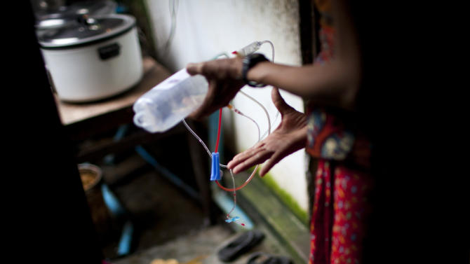 In this Sept. 1, 2012 photo, an HIV-infected woman holds a set of intravenous bag with a tube and needle that contains another HIV patient's blood on her way to dispose them at an HIV/AIDS center on the outskirts of Yangon, Myanmar. Because of a lack of trained medical caregivers, HIV patients at the hospice help each other with intravenous injections. Following a half century of military rule, care for HIV/AIDS patients in Myanmar lags behind other countries. Half of the estimated 240,000 people living with the disease are going without treatment and 18,000 are dying from it every year. (AP Photo/Alexander F. Yuan)