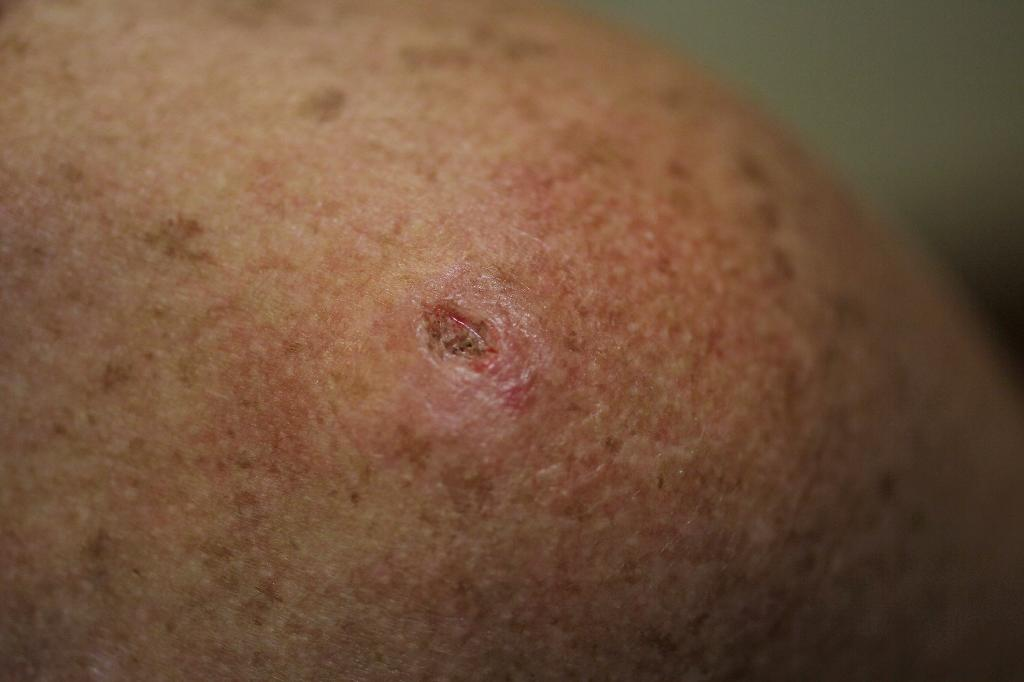 Trial shows virus treatment effective against skin cancer