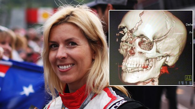 How woman survived brutal Formula One crash - Yahoo Autos