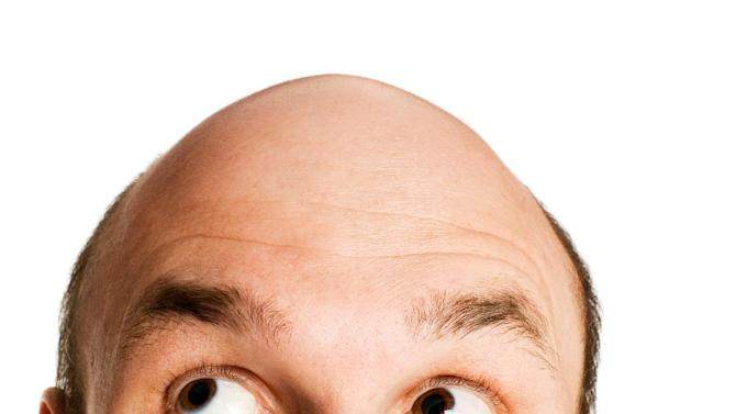 Questions persist about sexual effects of baldness drug