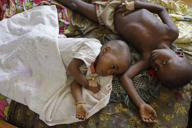 FILE - Two children stricken down with malaria rest at the local hospital in the small village of Walikale, Congo, in this Sunday, Sept. 19, 2010 file photo. Malaria is spread by mosquitoes and kills more than 650,000 people every year, mostly young children and pregnant women in Africa. An experimental malaria vaccine developed by GlaxoSmithKline and the PATH Malaria Vaccine Initiative, helped develop a new experimental malaria vaccine which was thought promising but is now turning out to be a disappointment, with a new study showing it is only about 30 percent effective at protecting infants from the killer disease according to results released in South Africa Friday Nov. 9, 2012. (AP Photo/Schalk van Zuydam, file)