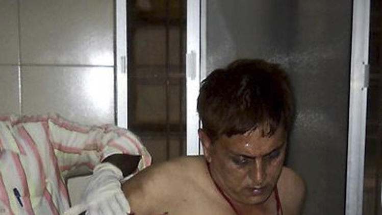 In this Saturday, May 25, 2013 photo, an unidentified injured of a rebel attack gets treated in a government hospital in Raipur, India. About 200 suspected Maoist rebels set off a land mine and opened fire on a convoy of cars carrying local leaders and supporters of India's ruling Congress party in the country's east, killing at least 28 people and wounding 24 others, police said. (AP Photo)