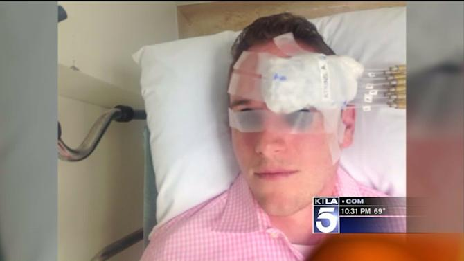 Man Who Lost Eye to Melanoma Raises Money for Others With the Disease