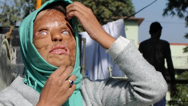 'Millionaire' Acid Attack Victim Using Money for Surgery