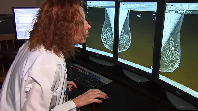 Researchers: Math model can predict women's cancer risk