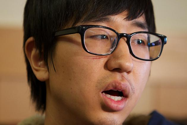 Jaemin Seo, 23, a Korean student from Vancouver, B.C., speaks Monday Dec. 31, 2012, in Pendleton, Ore., about waking up to people screaming and then being thrown from a  bus that crashed in rural East