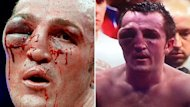 Two shots of boxing&#39;s Denis Lebedev after his fight with Guillermo Jones