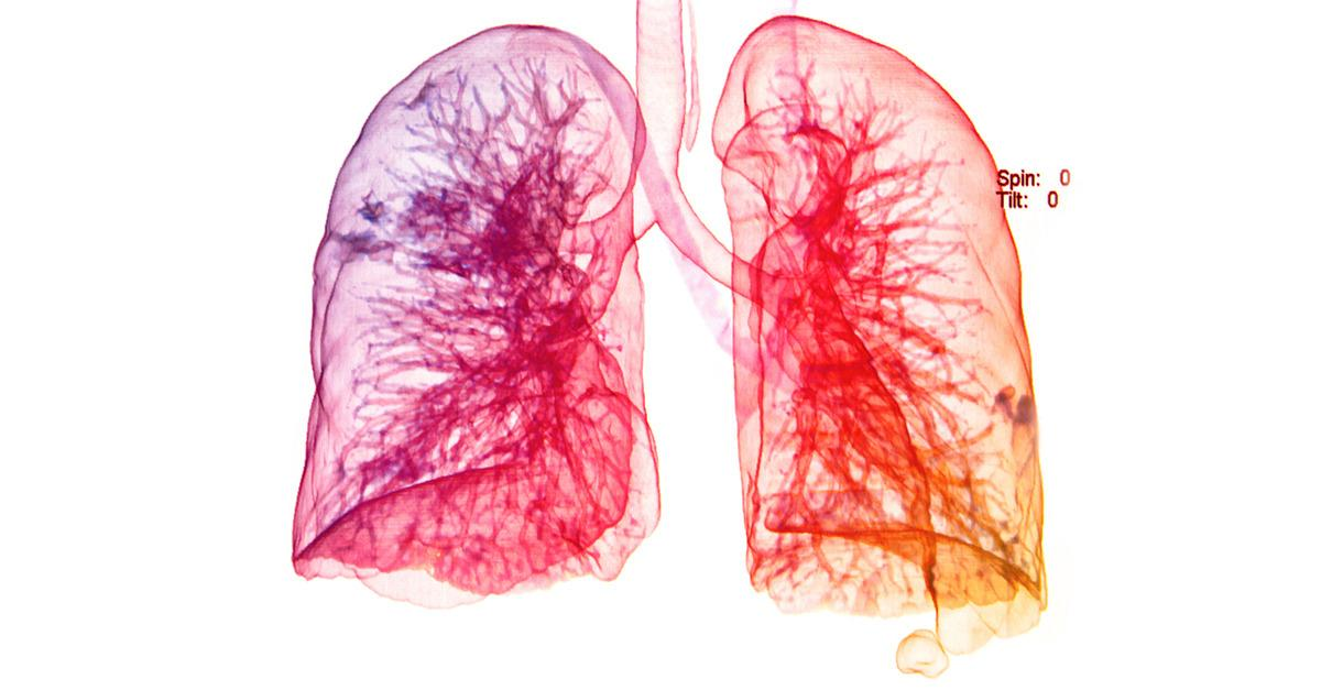 Repair Damaged Lung Tissue with Your Stem Cells