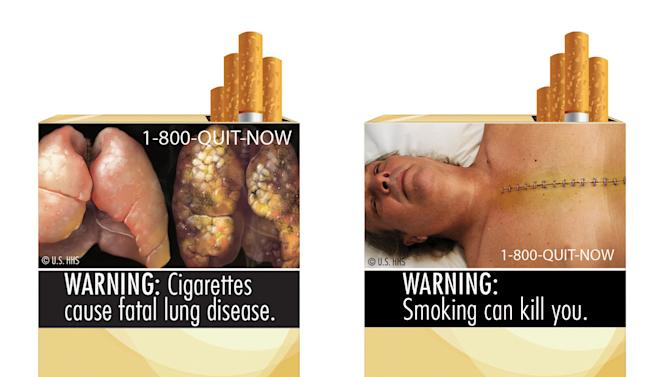 FILE - This combination photo made from file images provided by the U.S. Food and Drug Administration shows two of nine cigarette warning labels from the FDA. A judge on Wednesday, Feb. 29, 2012 blocked the federal requirement that would have begun forcing U.S. tobacco companies to put large graphic images on their cigarette packages later this year to show the dangers of smoking and encouraging smokers to quit lighting up. (AP Photo/U.S. Food and Drug Administration, File)