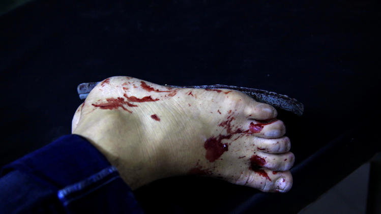 Blood is seen on a foot of an injured Syrian man while he receives treatment at a field hospital in Aleppo city, Syria, Friday, Aug. 17, 2012. Rebel footholds in Aleppo have been the target of weeks of Syrian shelling and air attacks as part of wider offensives by President Bashar Assad's regime. Rebels have been driven from some areas, but the report of clashes near the airport suggests the battles could be shifting to new fronts.(AP Photo/ Khalil Hamra)