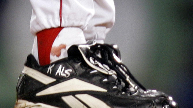 FILE - In this Oct. 24, 2004, file photo, blood appears around the right ankle of Boston Red Sox pitcher Curt Schilling during the sixth inning of Game 2 of baseball's World Series against the St. Louis Cardinals in Boston. Schilling, whose video game company underwent a spectacular collapse into bankruptcy last year, is selling the blood-stained sock he wore during that game. (AP Photo/Winslow Townson, File)