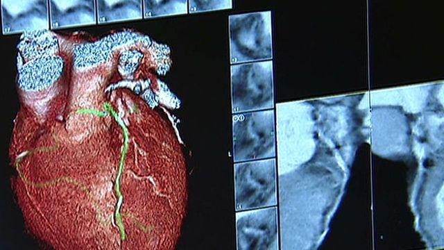 Study: Converting skin cells into healthy heart cells