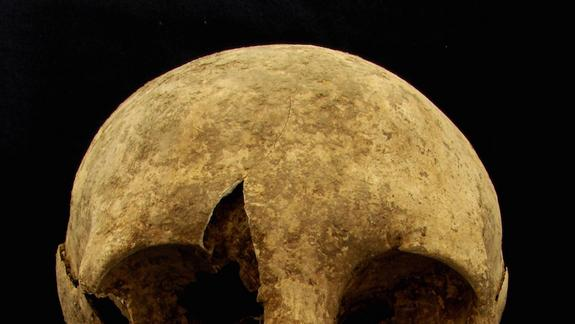 First Migrants to Imperial Rome ID'd by Their Teeth