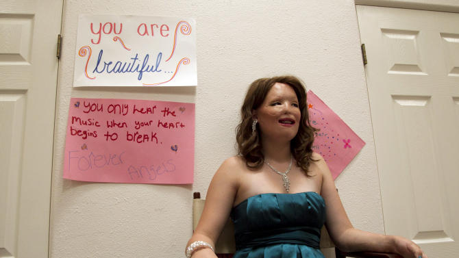 In this June 22, 2012, photo, Bethany Essary, 16, smiles while watching her friends get ready for a closing ceremony at the Angel Faces retreat in Corona, Calif. Angel Faces is an annual retreat for young girls with severe burns or facial disfigurement that focuses on psychological healing through group counseling, role-playing, art therapy and workshops that teach coping skills. (AP Photo/Jae C. Hong)