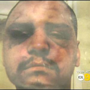 Man Whose Alleged Beating Prompted FBI's LASD Abuse Probe Hopes Justice Is Served