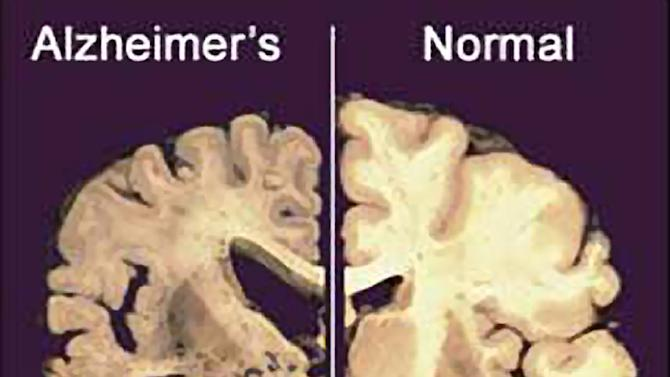 """FILE - This undated file image provided by Merck & Co., shows a cross section of a normal brain, right, and one of a brain damaged by advanced Alzheimer's disease. A dramatic shift is beginning in the disappointing struggle to find something to slow the damage of Alzheimer's disease: The first U.S. experiments with """"brain pacemakers"""" for Alzheimer's are getting under way. Scientists are looking beyond drugs to implants in the hunt for much-needed new treatments. (AP Photo/Merck & Co., File)"""
