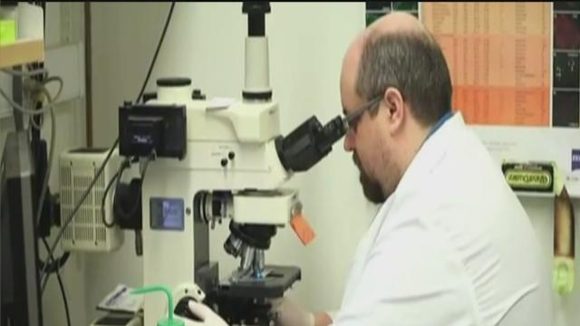 U-M stem cell trial for Lou Gehrig's Disease