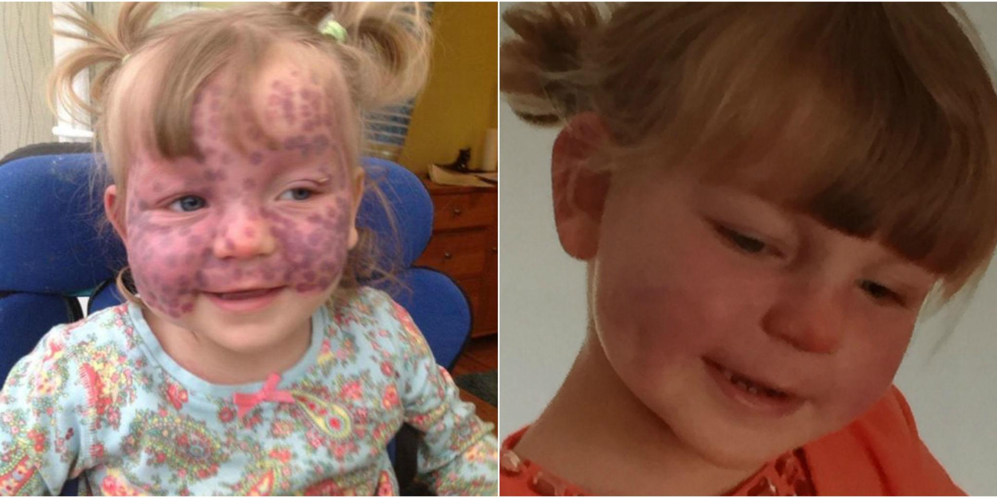 """This Brave """"Polka Dot Princess"""" Is One Inspirational Little Fighter"""