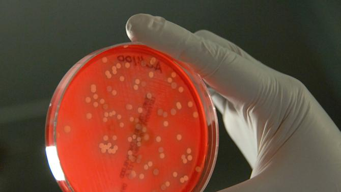 Rare Bacterial Infection Claims 18 Lives in Wisconsin, Leading CDC to Launch Investigation