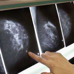 Breast Cancer Patients Often Lack Knowledge Of Their Tumors