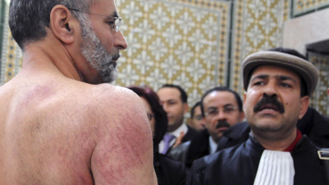 FILE - In this Dec.29, 2010 file photo, Tunisian lawyer Abdraouf Ayadi, left, shows injuries to his back he claims were caused by police officers, while Chokri Belaid looks on, during a press conference at the lawyers' Bar in Tunis. A Tunisian opposition party says Wednesday, Feb.6, 2013 its leader, who had criticized the Islamist-led government and violence by radical Muslims, has been shot to death outside his home. The Unified Democratic Nationalist Party says Chokri Belaid was shot as he left his house in the capital Tunis on Wednesday. Witnesses say he was taken to a nearby clinic and died.(AP Photo/Hassene Dridi, File )