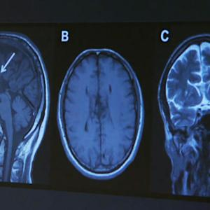 Brain abnormalities from mild concussions may last months