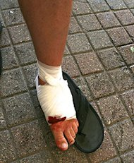 Jon Olson bitten foot is wrapped up after being bitten by a muskie at a fishing tournament.