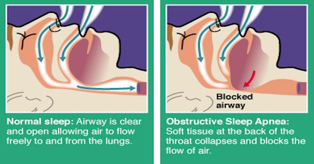 Obstructed airways cause snoring and sleep apnea.