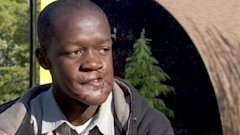 abc katu face surgery kb 130424 wblog Maimed African Teens Amazing Journey to America