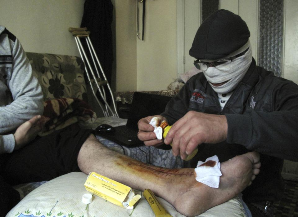An injured man gets treated in a Damascus neighborhood, Syria, Tuesday, April 3, 2012. A Syrian government official says troops have begun withdrawing from some cities and are returning to their bases. (AP Photo)