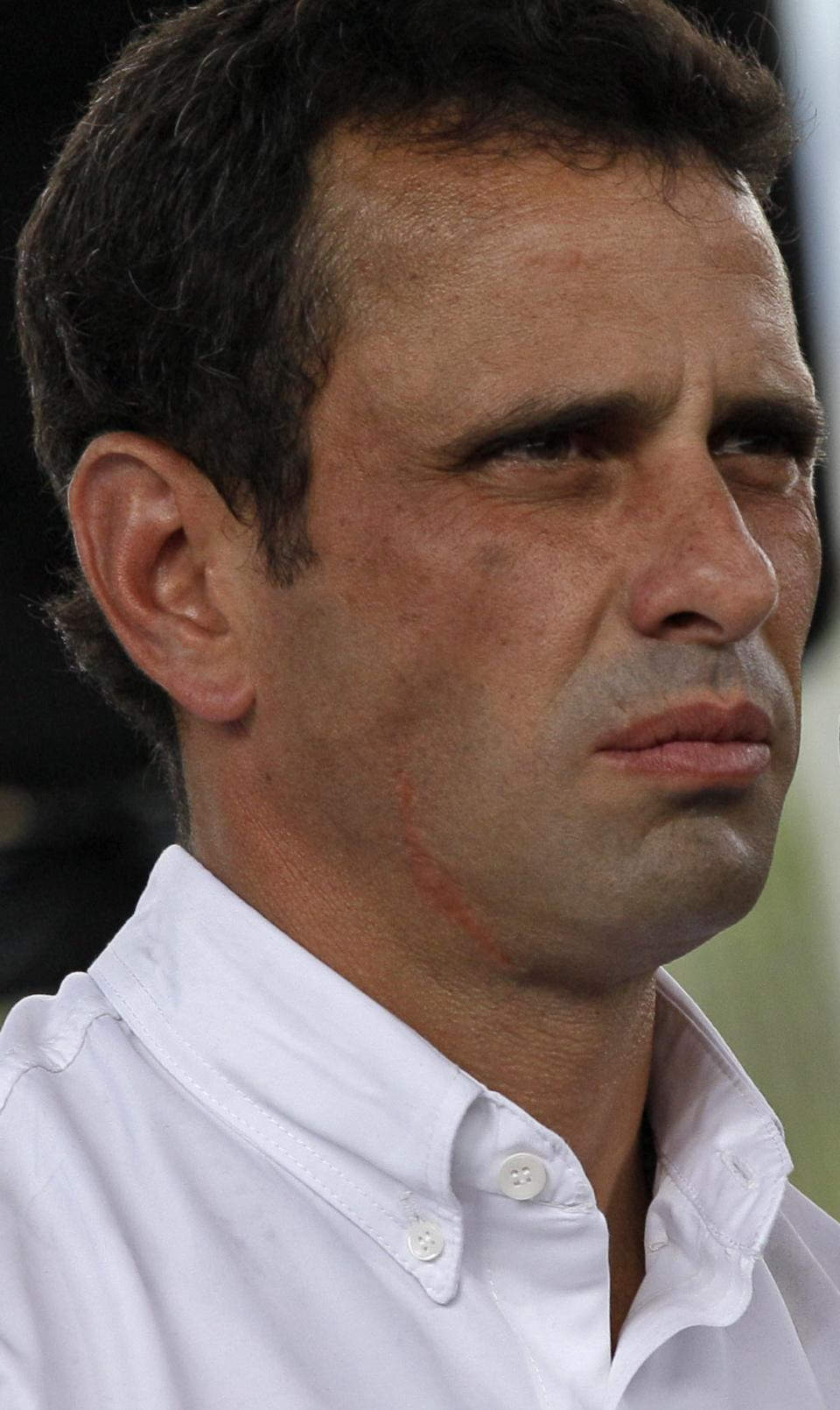Opposition presidential candidate Henrique Capriles talks to reporters after voting at a polling station in Caracas, Venezuela, Sunday, Oct. 7, 2012. Venezuela's electoral council says President Hugo Chavez has won re-election, defeating challenger Capriles.(AP Photo/Ariana Cubillos)