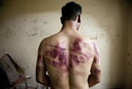 &lt;p&gt;A Syrian man shows marks of torture on his back, after he was released from regime forces in Aleppo on August 23. Mohamed Morsi, the first Egyptian leader to set foot in Iran in decades, caused a storm Thursday when he slammed the Syrian regime as &quot;oppressive&quot; and urged backing for rebels out to topple President Bashar al-Assad.&lt;/p&gt;
