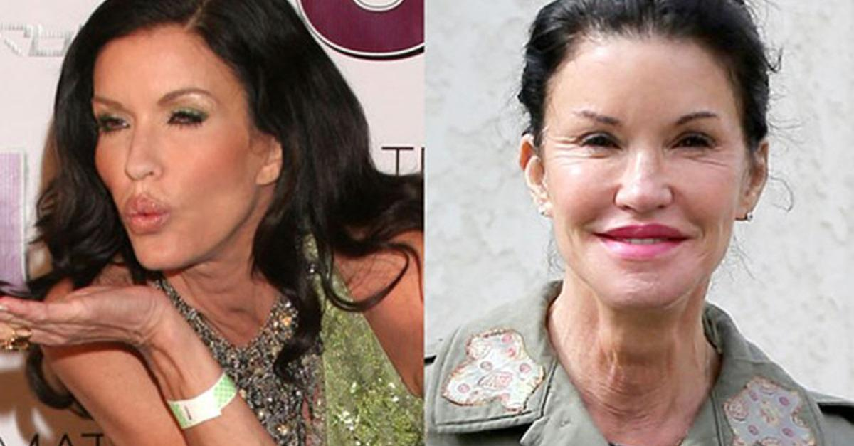 11 Celebrity Plastic Surgery Disasters