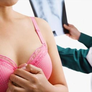 Are younger women benefiting from mammograms?