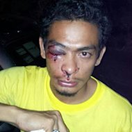 Bersih supporter hit by tear gas may lose sight in one eye