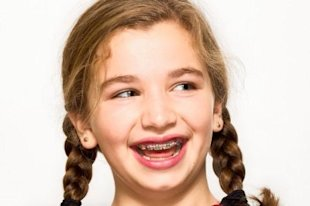 Eight-year-old Bailey Berman received braces to correct a crooked front tooth. Photo courtesy of the Wall Street Journal.
