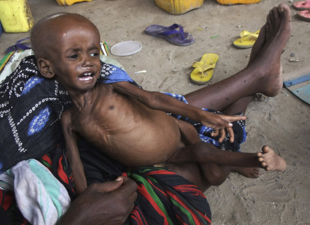 A malnourished child from southern Somalia cries on his mother's lap, at a refugee camp in Mogadishu, Somala, The United Nations says famine will probably spread to all of southern Somalia within a month and force tens of thousands more people to flee into the capital of Mogadishu.(AP Photo/Farah Abdi Warsameh)